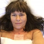 My Prophylactic Mastectomy: What Led Me to Go Under the Knife